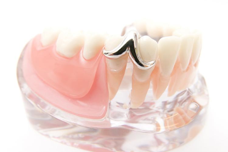 入れ歯の特徴